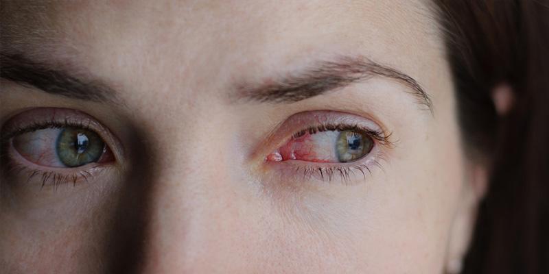 Allergische Augenerkrankungen