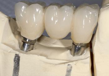 Risiken bei Implantaten