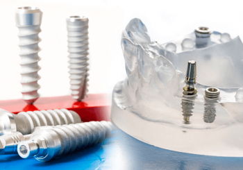 anwendung implantat
