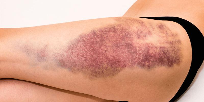 Haut- und Gewebeverletzung