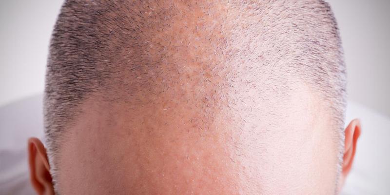 Schwellung nach Haartransplantation - postoperatives Symptom nach Transplantation von Haarwurzeln